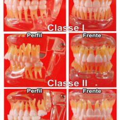 Kit Ortodontia com 3 Modelos em Acrílico Transparente