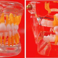 Macro Modelo Dentição Mista em Acrílico Transparente