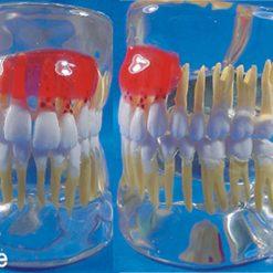 Modelo Doença Periodontal em Acrílico Transparente