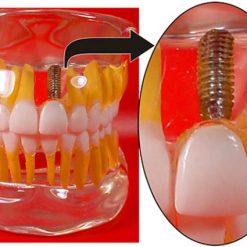 Modelo de Implante em Acrílico Transparente